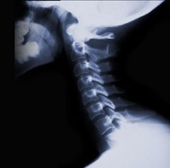 Cervical Spine Epidural Injection 01