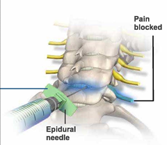 Cervical Spine Epidural Injection 03