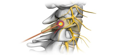 Radiofrequency Ablation of the Medial Branch Nerves 05