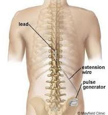 Spinal cord stimulator doctor nyc 02