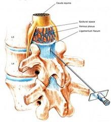 Lumbar Epidural Injeciton Doctor NYC p02
