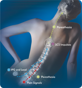 Spinal-Cord-Stimulator