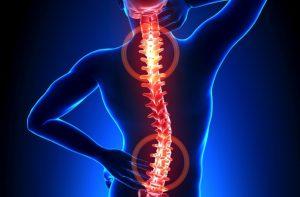 back_pain-209266eeb85aceecdb900cc8d5899587