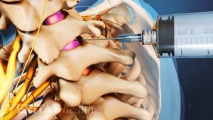cervical-epidural-steroid-injections-dr-nyc-pain-specialist-01