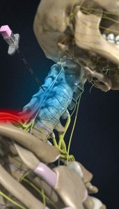 top-nyc-specialist-radiofrequency-ablation-neck-pain-02