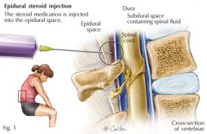 lumbar-steroid-injection-graphic-information-nyc-03