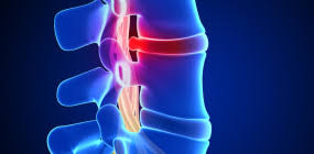 herniated-disk-extreme-pain-dr-for-pain-management-relief-nyc-03