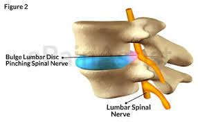 nyc-pain-doctor-for-lumbar-disc-decompression-01