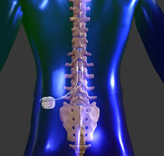 nyc-doctor-for-spinal-cord-stimulator-01