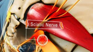 sciatic-nerve-pain-best-pain-doctor-nyc-03