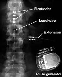 spinal-cord-stimulator-technical-parts-installed-photo-02