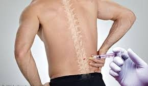 chronic-back-pain-medical-info-nyc-top-doctor-02