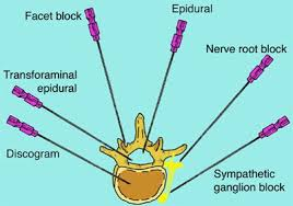 different-parts-spine-for-pain-injections-diagram-03