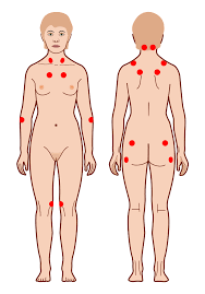 what-is-fibromyalgia-01