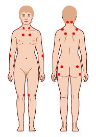 what-is-fibromyalgia-01