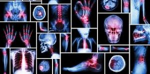 xrays-scans-different-arthritis-top-pain-doctor-nyc-03