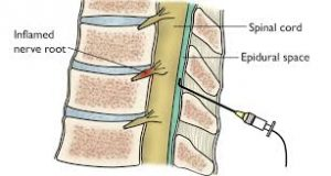 what-is-spinal-epidural-injection-01