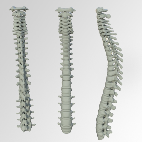 spinal injections for pain