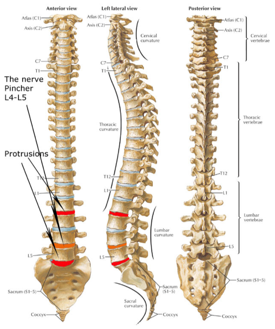Sciatic nerve pain - spinal diagram nerves